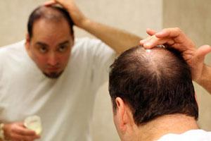 پیشگیری و درمان طاسی مردان