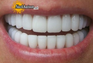 ویتامینی برای پیشگیری از پوسیدگی دندان