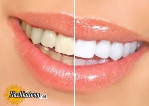آیا جرمگیری دندان صحیح است؟