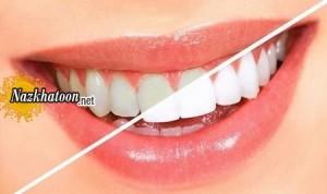 برای داشتن دندان های مرواریدی