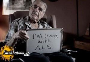 بیوگرافی کلی بیماری ALS (اسکلروز جانبی آمیوتروفیک)