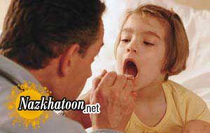 درمان چرک و عفونت گلو با داروی گیاهی