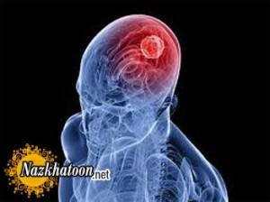 علائم مهم که خبر از تومور مغزی می دهد