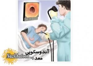 درمان چاقی با آندوسکوپی معده