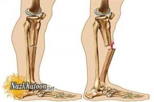 علائم شکستگی استخوان و روش درمان