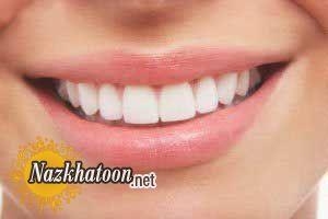 سفید کردن دندان ها تا عید