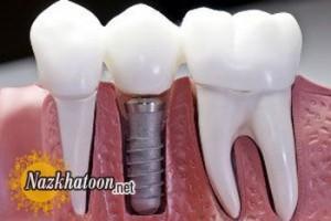 منع ایمپلنت دندان برای این افراد