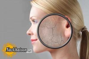 درمان و علت خشکی پوست