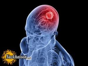 دانستنی های ایجاد تومور مغزی