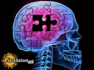 راه درمان و علائم بیماری آلزایمر