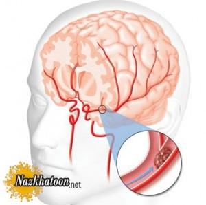 پیشگیری از سکته مغزی با راههای ساده