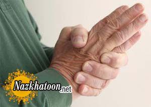 تسکین درد آرتریت با داروهای گیاهی