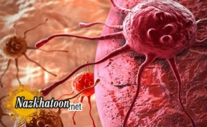 راهکارهای ساده برای پیشگیری از سرطان