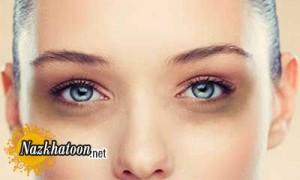 ترفند آرایشی برای کبودی زیر چشم