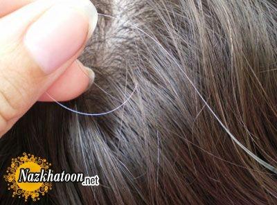 سفیدشدن مو و نظر طب سنتی