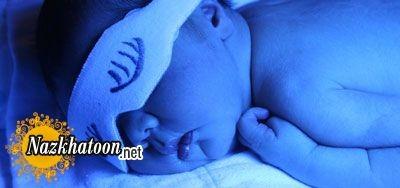 روشهای درمان یرقان یا زردی نوزادان