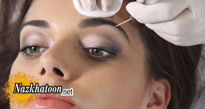 implant-eyebrows2-e6