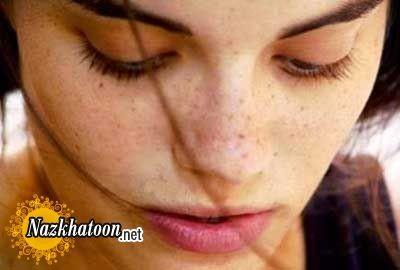 از بین بردن لک های پوست