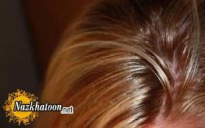 علت چرب شدن موها