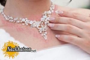 حساسیت پوستی به زیورآلات