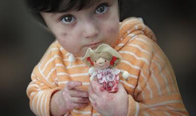 آشنایی با بیماری eb در کودکان