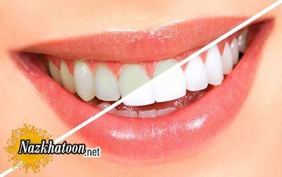 سفید کردن دندانها در نوروز