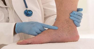 معرفی روش های درمان واریس