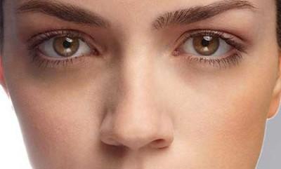 درمان همیشگی حلقه سیاه زیر چشم