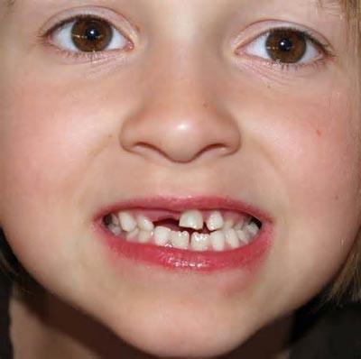 مراقبت از دندان شیری کودکان