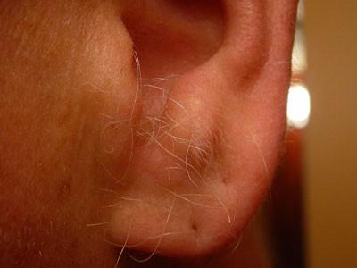 نشانه های وجود مو بر روی لاله گوش