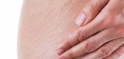 ورزش برای بهبود ظاهر ترکهای پوستی