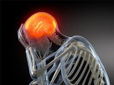 چندین نشانه آسیب مغزی