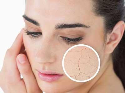 چندین مشکل رایج خشکی پوست