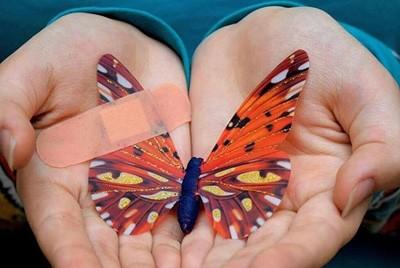 بیماری ای بی (EB) پروانهای