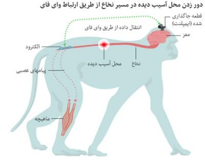 درمان بیماران قطع نخاعی