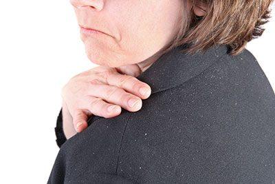 چندین درمان خانگی شوره سر