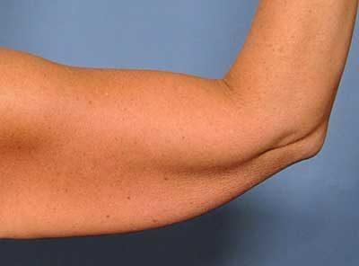 کاهش دادن وزن و پوستهای شل