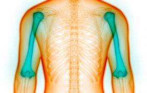 علائم مخفی پوکی استخوان