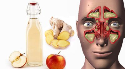 درمان طبیعی بیماری سینوزیت