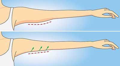 بهترین راه برای کاهش چربی بازوها