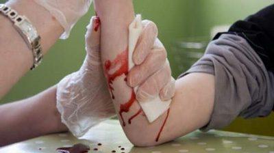 چند روش خانگی برای توقف خونریزی