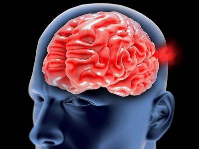پیشگیری و درمان بیماری آنوریسم مغزی