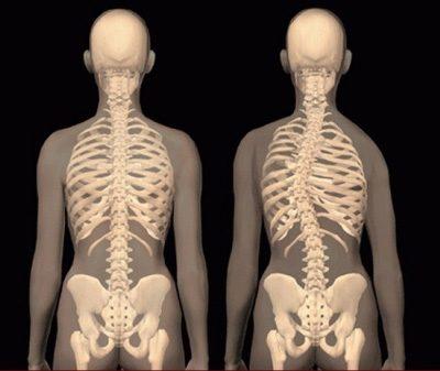 بیماری اسکولیوز نتیجه حمل نادرست کولهپشتی