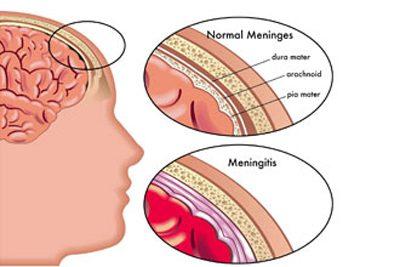 بیماری التهاب مغز یا آنسفالیت